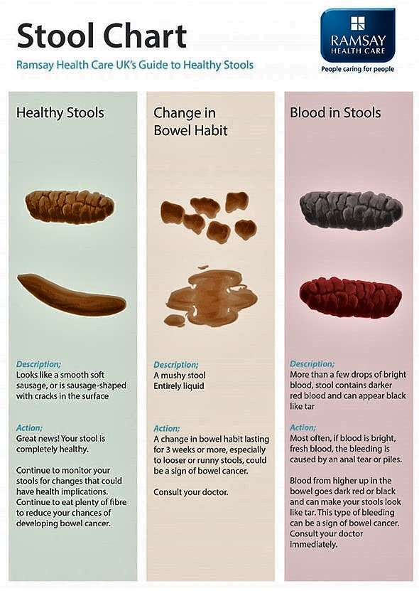bowel-cancer-symptoms-signs-poo-stool-blood-uk-nhs-1323023